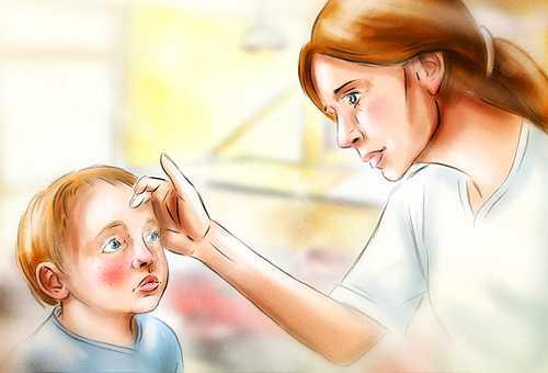 Как диагностируется корь у детей