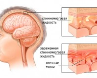 Что такое менингит и почему он возникает?