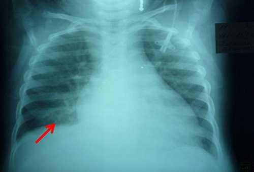 Что такое очаговая пневмония?