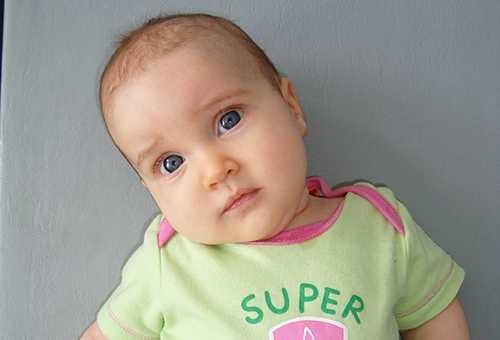 Ребенок, страдающий кривошеей