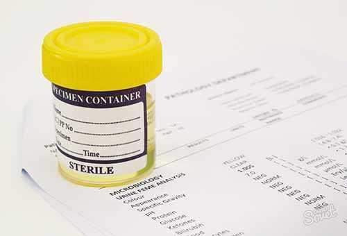 Медицинский контейнер с биоматериалом для анализа