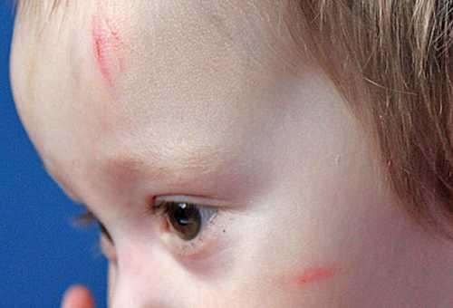 Ссадины на голове у ребенка