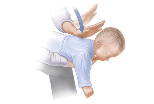 Ребенок подавился: первая помощь