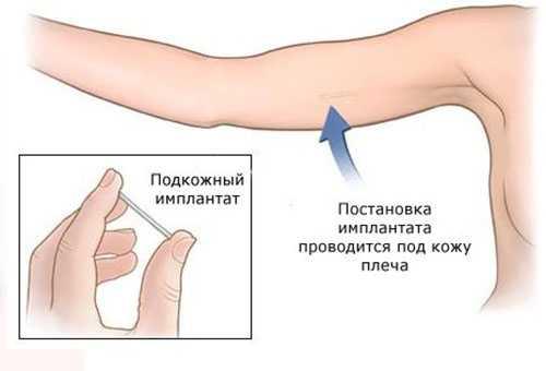 Контрацептив в виде импланта под кожу