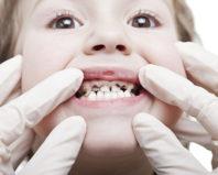 У ребенка почернели зубы