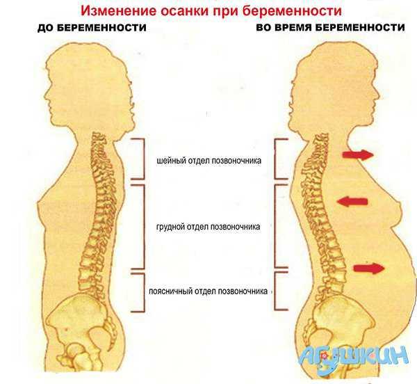 Изменения в костной системе