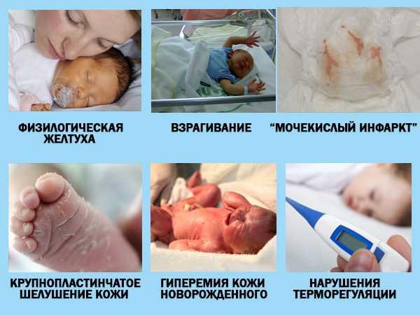 Пограничные состояния новорожденного