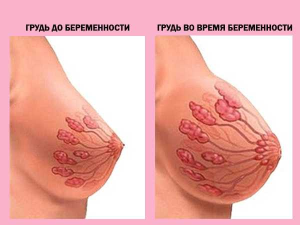 Изменение груди у беременных