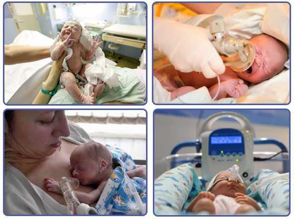 Оценка необходимости реанимационных мероприятий новорожденному