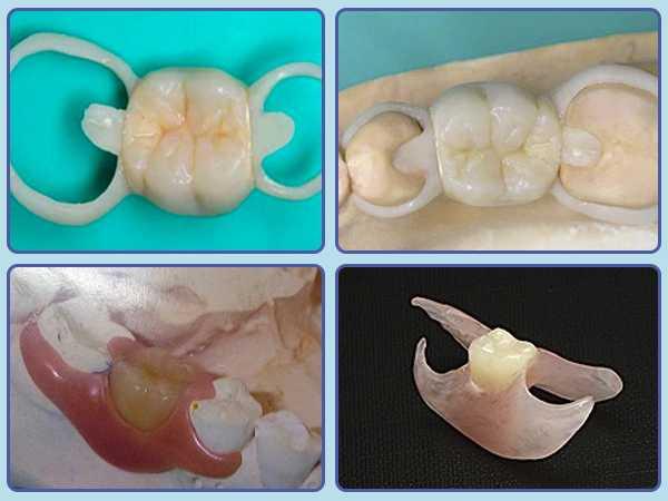 Смена зубов началась