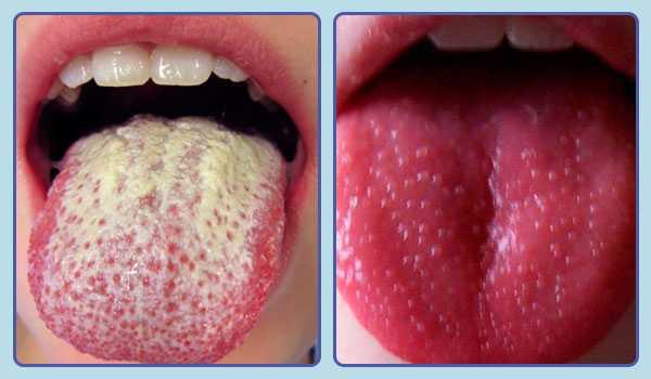 Различные инфекционные заболевания