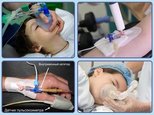Виды используемых методик обезболивания в детской практике